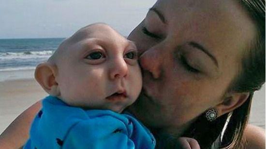 El bebé que sobrevive sin parte del cráneo y del cerebro