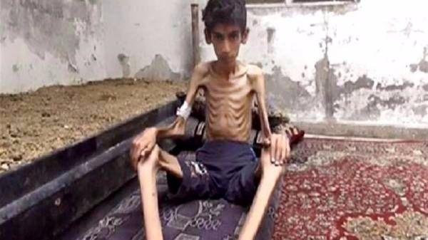 Madaya está muerta de hambre