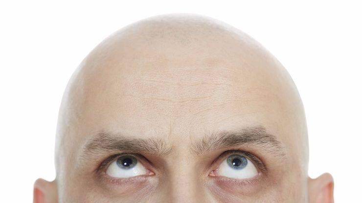 Hablamos de... Alopecia
