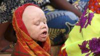 Protejan a los albinos de Malawi