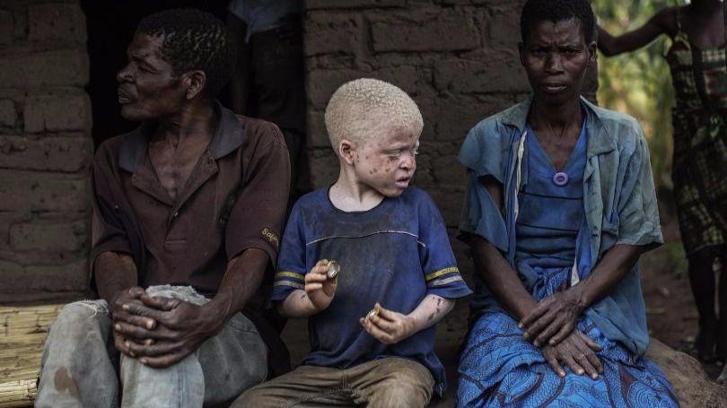 No somos animales para cazar o vender: somos albinos