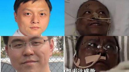 Dos médicos chinos cambian su color de piel a negra tras superar el coronavirus